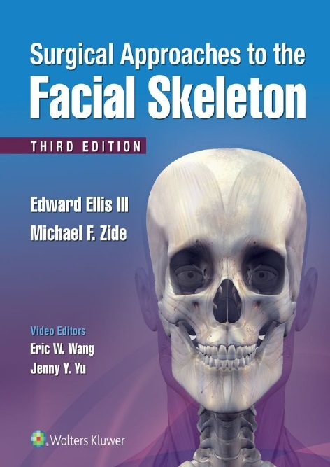 Surgical Approaches to the Facial Skeleton PDF