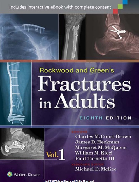 Rockwood and Green's Fractures in Adults 8th Edition PDF