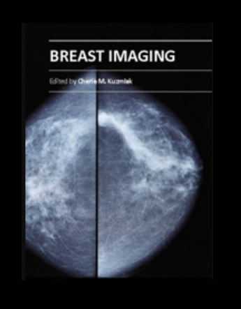 Breast Imaging PDF