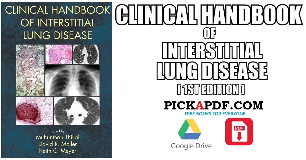 Clinical Handbook of Interstitial Lung Disease PDF Free Download