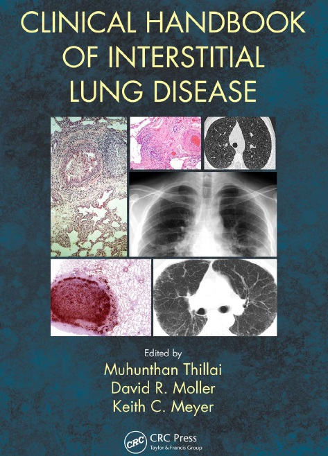 Clinical Handbook of Interstitial Lung Disease PDF