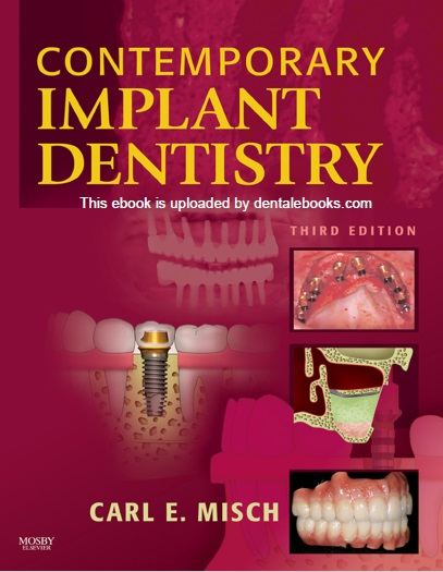 Contemporary Implant Dentistry 3rd Edition PDF