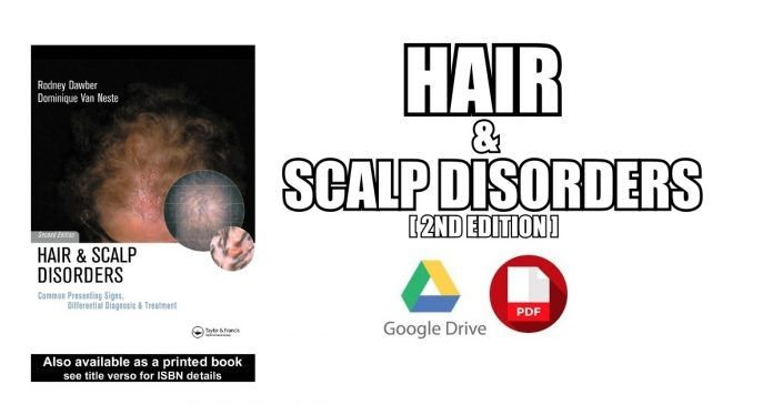 Hair and Scalp Disorders PDF