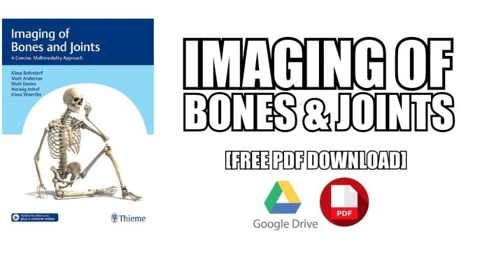 Imaging Of Bones And Joints PDF