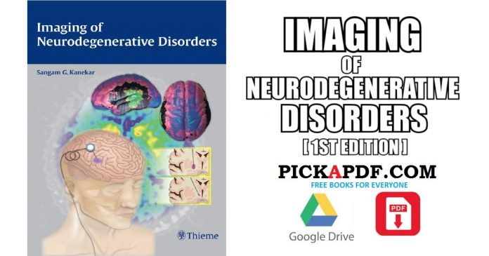 Imaging of Neurodegenerative Disorders PDF