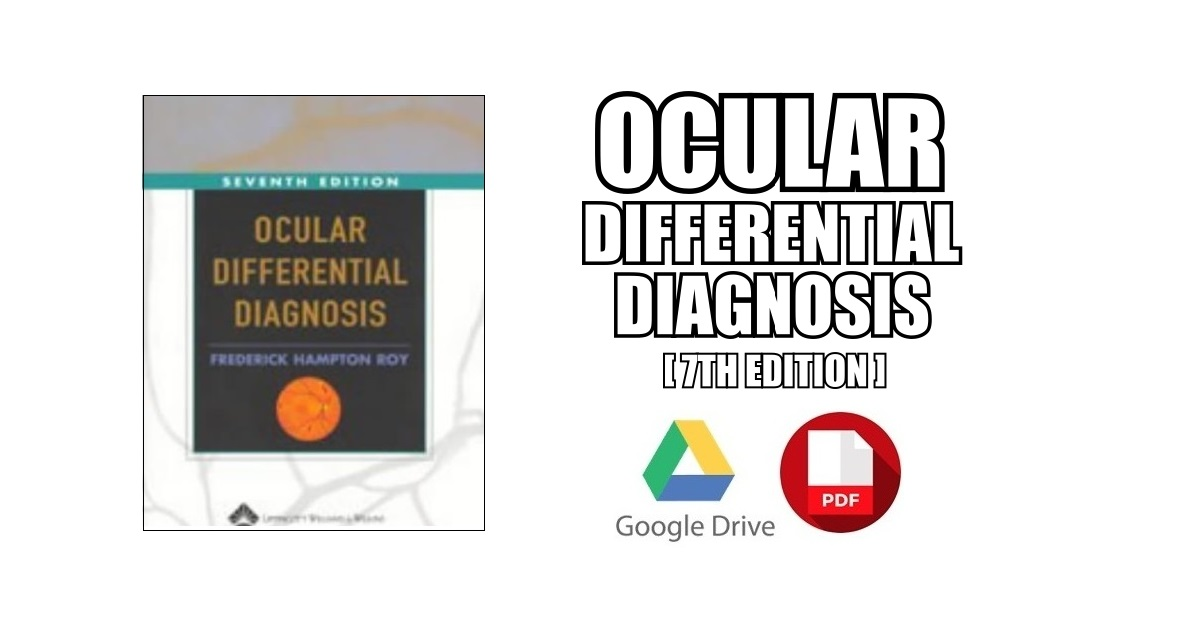Ocular Differential Diagnosis PDF Free Download [Direct Link]