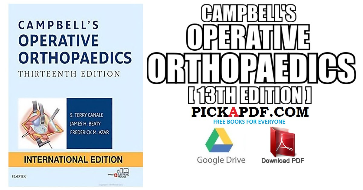 Campbell\'s Operative Orthopaedics PDF Free Download [Direct Link]