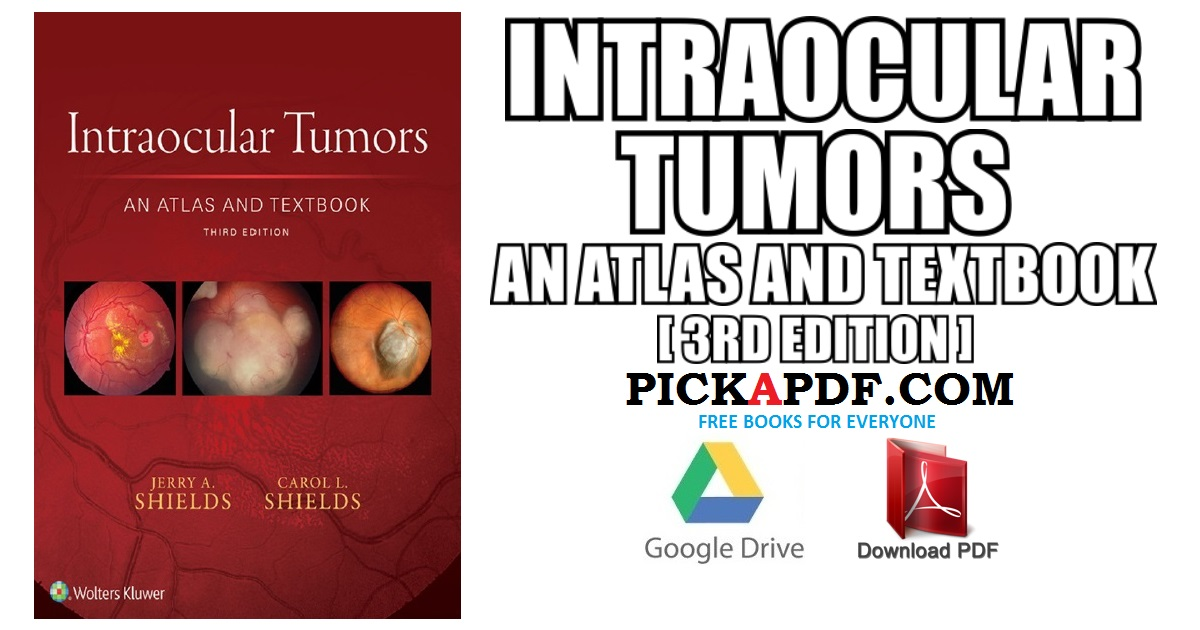 Intraocular Tumors An Atlas and Textbook PDF Free Download