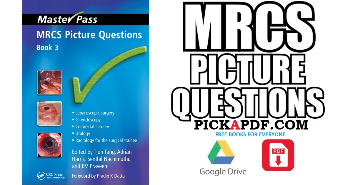 Basic Science for the MRCS 2nd Edition PDF Free Download ...