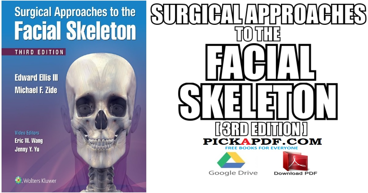 Surgical Approaches to the Facial Skeleton PDF Free Download
