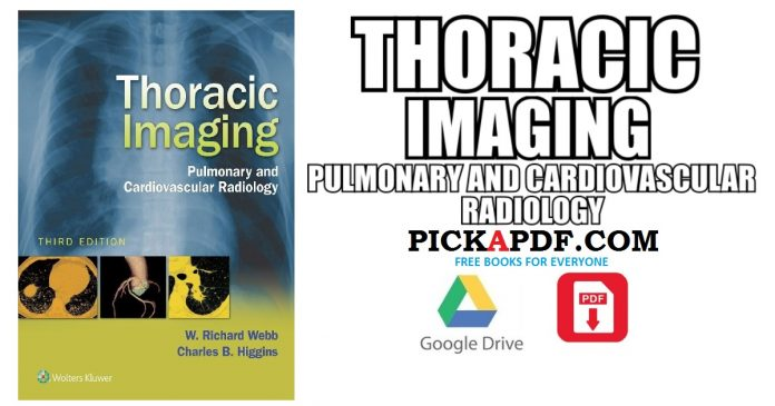 Thoracic Imaging PDF