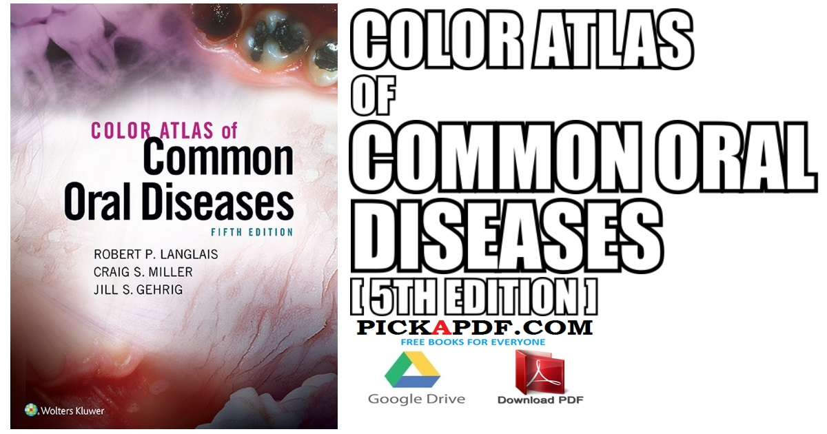 Color Atlas of Common Oral Diseases PDF Free Download [Direct Link]