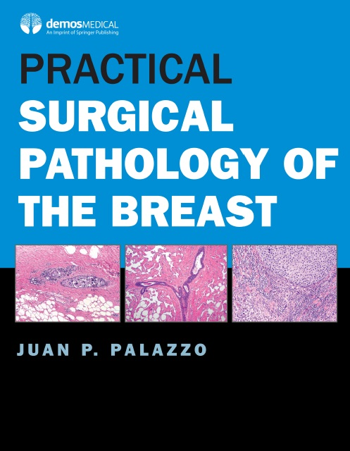 Practical Surgical Pathology of the Breast PDF