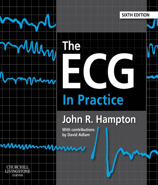 The ECG In Practice 6th Edition PDF