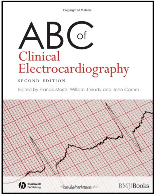 ABC of Clinical Electrocardiography 2nd Edition PDF