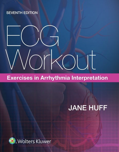 ECG Workout: Exercises in Arrhythmia Interpretation 7th Edition PDF