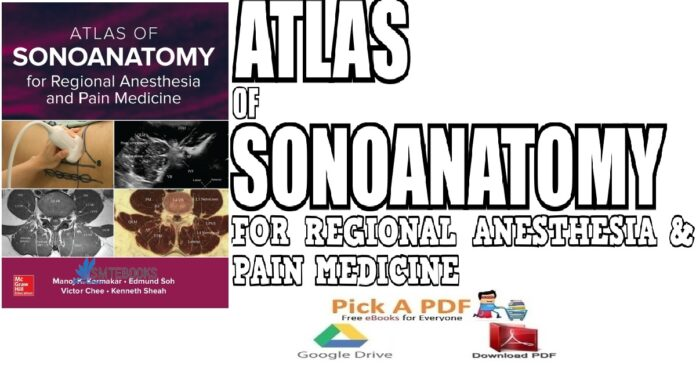Atlas of Sonoanatomy for Regional Anesthesia and Pain Medicine PDF